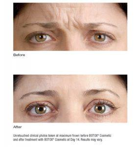 Botox Uygulaması