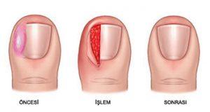 Parsiyel/Total Matrisektomi